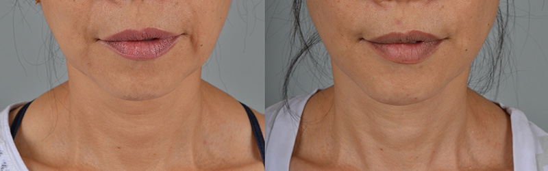 Dr. Stuzin Facelift Before & After
